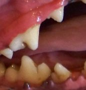Teeth after cleaning
